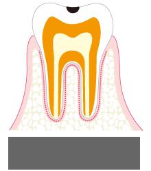 C1 エナメル質内の虫歯