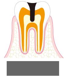 C3 神経 (歯髄)に達した虫歯