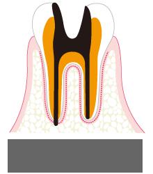 C4 歯質が失われた虫歯