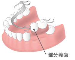 部分義歯(入れ歯)