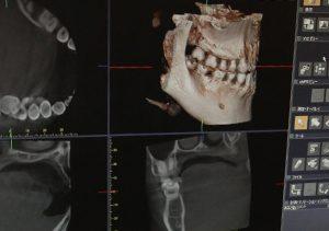 歯科用CT(コンピューター活断撮影器)による診断